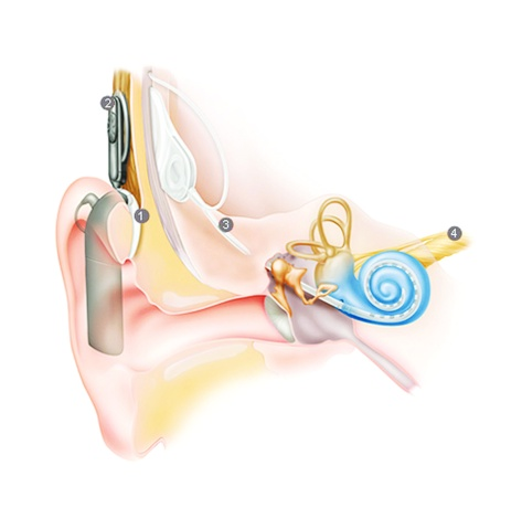 Cochlear Implant 1. The Sound Processor captures sounds and converts them into digital signals. 2. The Processor sends digital signals to Internal Implant. 3. The implant turns the signals to electrical impulses and sends them to an array inside the Cochlea. 4. The Electrodes stimulate hearing nerve, and the signal is sent to the brain.